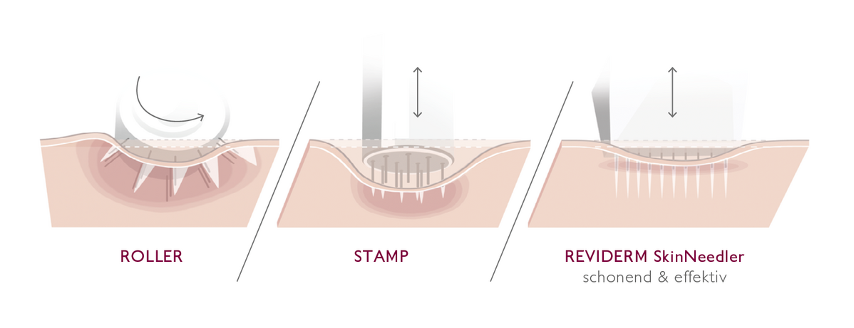 Reviderm Micro-Needling